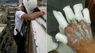 化骨水洗牆!5工人指頭發黑「被吃掉」 心酸控無良包商